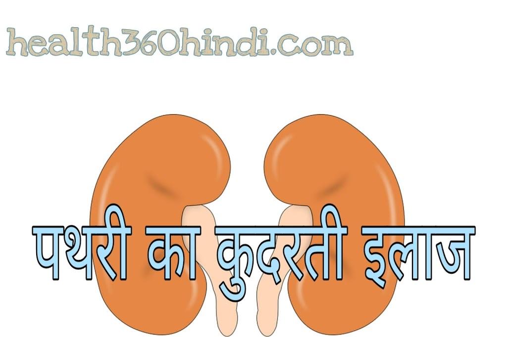 Natural cure of kidney stone in Hindi – जानिए पथरी का कुदरती इलाज