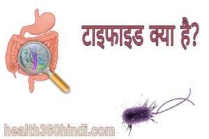 Typhoid in Hindi
