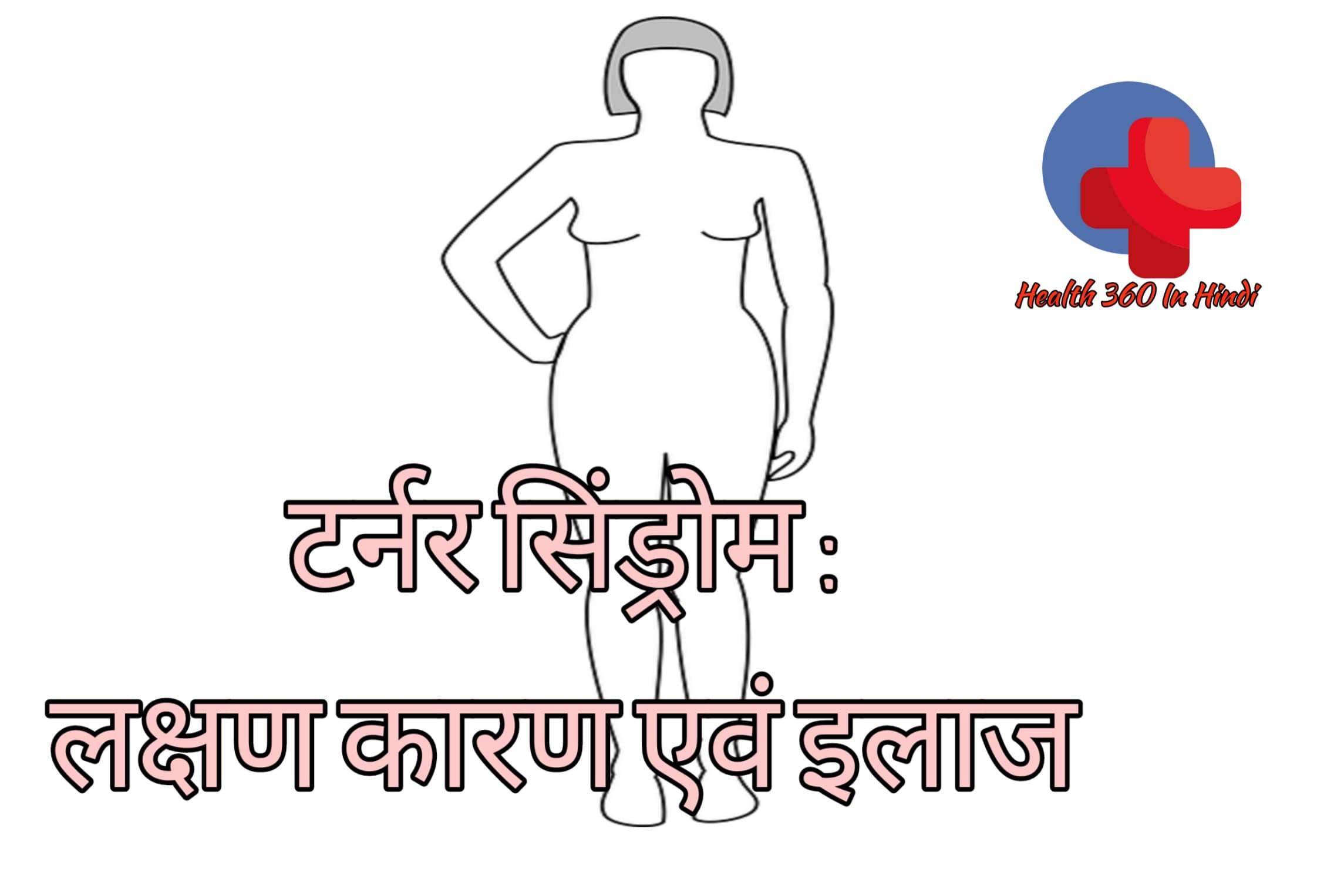 टर्नर सिंड्रोम : लक्षण कारण एवं इलाज Turner Syndrome in Hindi