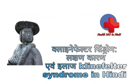 Klinefelter Syndrome in Hindi