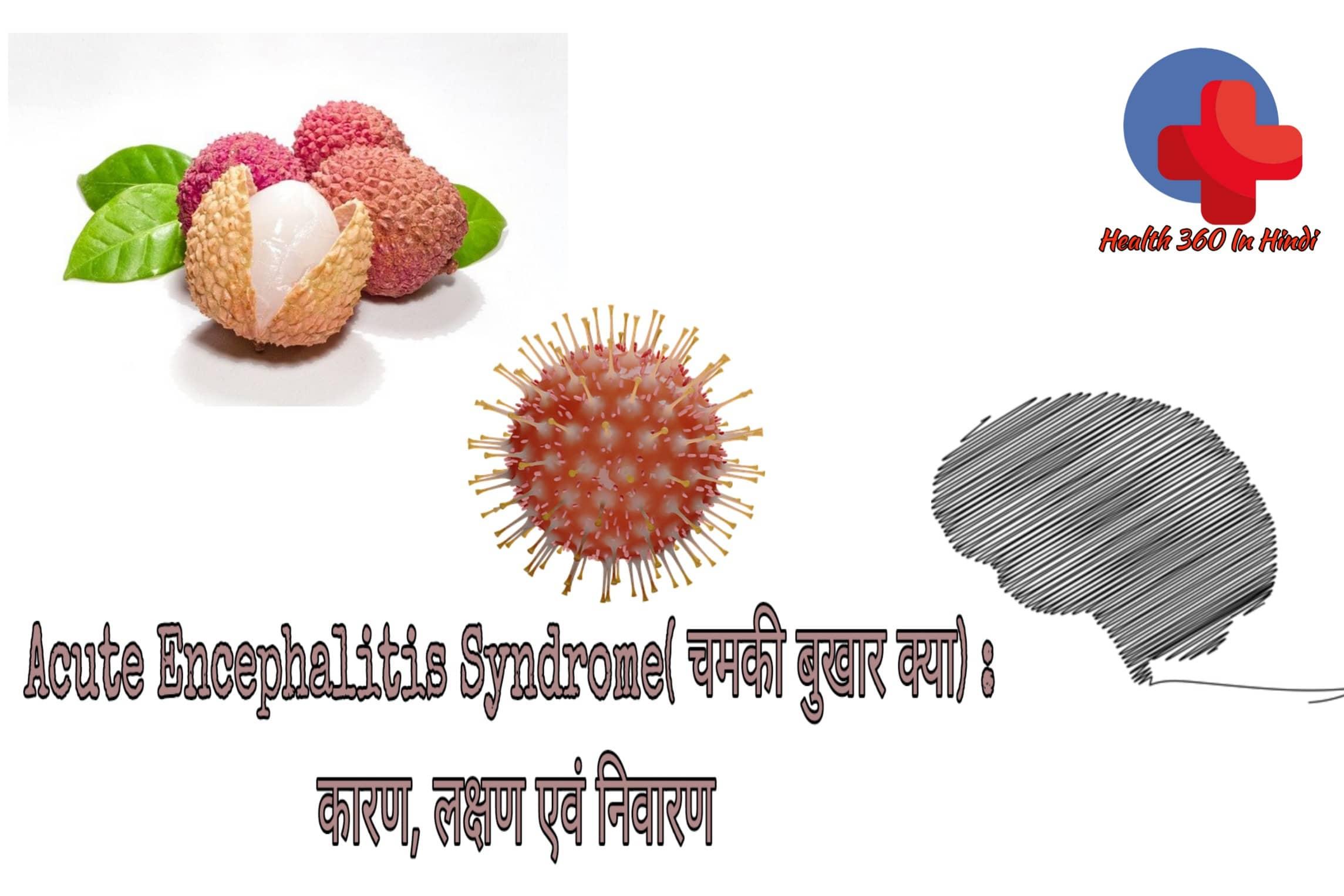Acute Encephalitis Syndrome in Hindi – चमकी बुखार क्या है?